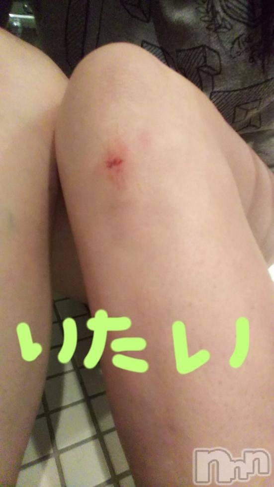新潟デリヘル至れり尽くせり(イタレリツクセリ) しの(32)の11月21日写メブログ「足から血が出て、、、」